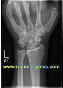 Frontal radiograph of the left wrist. What are the findings?