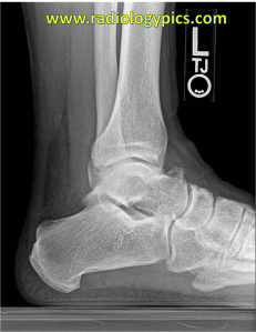 Lateral radiograph of the left ankle. What is the finding?