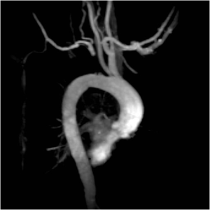 Oblique MR angiogram of the aorta and neck vessels.