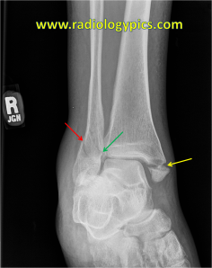 Lauge Hansen SER IV - Ankle mortise view shows fracture of the medial malleolus (yellow arrow) and a spiral fracture of the lateral malleolus (red arrow) which extends to the medial cortex of the fibula (green arrow). This is a Lauge Hansen supination external rotation type IV injury (the posterior malleolus fracture was noted on the lateral view).