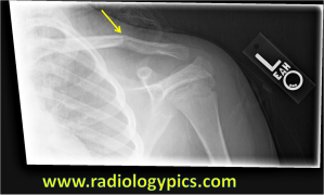Clavicle Fracture - a fracture is seen at the mid left clavicle (yellow arrow) with mild apex cephalad angulation.
