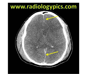 Diffuse Cerebral Edema - Axial noncontrast CT scan of the head reveals diffuse effacement of the sulci and lateral ventricles and hypoattenuation of the brain parenchyma. Note also the falx appears hyperattenuating (yellow arrows), although no subdural or subarachnoid hemorrhage was present.