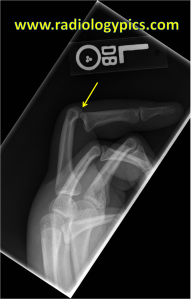 Dislocated proximal interphalangeal joint - Lateral radiograph of the left hand reveals complete volar dislocation of the third proximal interphalangeal joint.