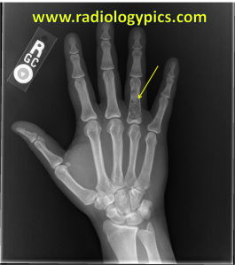 Enchondroma - frontal radiograph of the right hand reveals a lytic lesion in the fourth proximal phalanx (yellow arrow) with subtle areas of calcified matrix within the lesion compatible with an enchondroma.