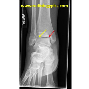 Osteochondral injury - frontal radiograph of the right ankle reveals a fracture line through the lateral corner of the talar dome (yellow arrow) and a more subtle irregularity of the medial talar dome (red arrow).