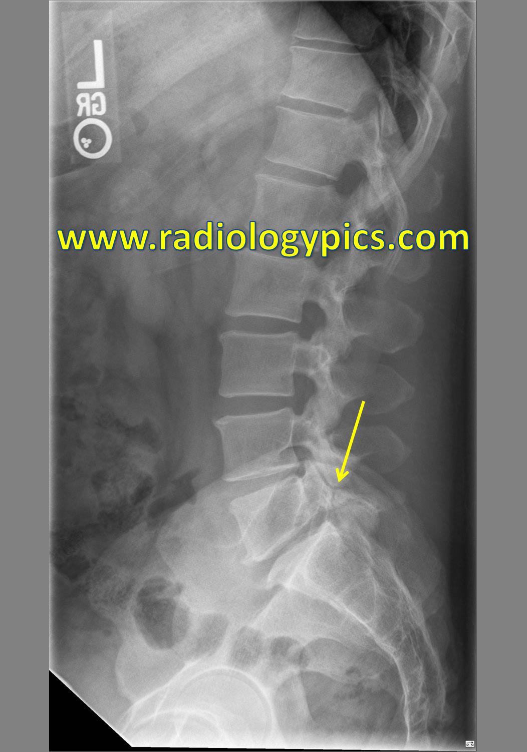L4 Pars Fracture