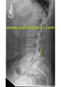 Pars defects - lateral radiograph of the lumbosacral spine reveals a pars interarticularis defect at L5-S1, with anterolisthesis of L5 on S1. This is also referred to as spondylolysis with spondylolisthesis.
