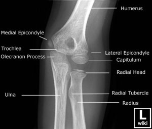 Oblique radiograph of the elbow with anatomy labels.