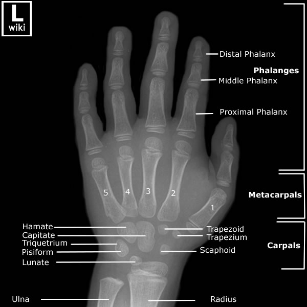 Pediatric Hand Anatomy Radiologypics