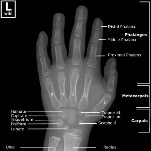 Frontal radiograph of the hand with labeled anatomy.