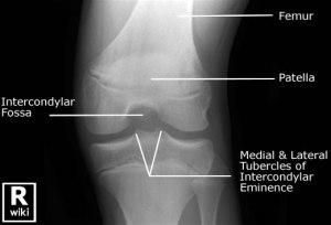 peds knee ossification