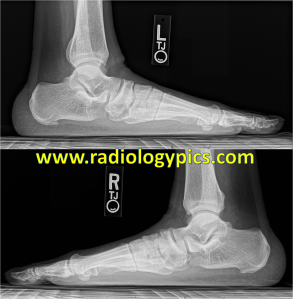 Pes Planus - Lateral radiographs of both feet show marked flattening of the longitudinal arch and overlap of the metatarsals, compatible with pes planus and pronation/valgus of the forefoot.