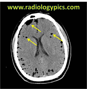 Pneumocephalus - diffuse low density bubbles of air (yellow arrows) are tracking within the sulci and collecting over the right frontal lobe.