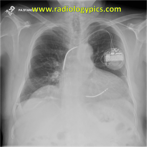 Implantable Cardioverter Defibrillator Device - frontal radiograph of the chest shows a relatively normal appearing ICD in the left chest wall with apparently intact leads in the right atrial appendage and right ventricle.