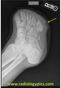 Diabetic Foot - this patient is status post transmetatarsal amputation, presumably for osteomyelitis given the remaining soft tissue ulceration on the lateral aspect at the base of the fifth metatarsal (yellow arrow).