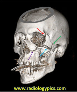Zygomaticomaxillary Complex Fracture (AKA Tripod fracture) - The red arrow indicates fracture of the frontal process of the zygoma, the green arrow indicates fracture of the zygomatic arch, the blue arrow indicates fracture of the zygomatic process of the maxilla or the zygomaticomaxillary suture, and the purple arrow indicates fracture of the nasomaxillary suture.
