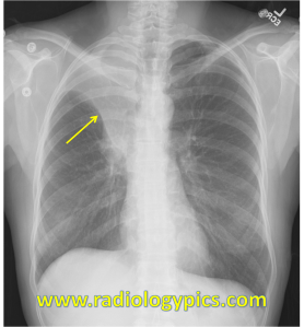 Right upper lobe collapse - Frontal radiograph of the chest reveals a classic Golden S sign (yellow arrow), compatible with complete collapse of the right upper lobe.