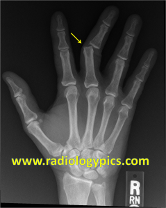 Dislocated Proximal Interphalangeal Joint - Frontal radiograph of the hand reveals ulnar dislocation of the third proximal interphalangeal joint (yellow arrow).