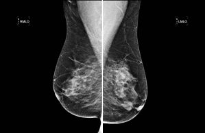 Bilateral mediolateral oblique (MLO) views of the normal female breasts, with heterogenously dense fibroglandular tissue (normal breast tissue)