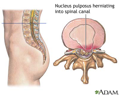 Hernia de disc lombara (HDL): diagnostic si tratament actual - Move&Flex