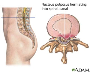 Herniated nucleus pulposus is a condition in which part or all of the soft, gelatinous central portion of an intervertebral disk is forced through a weakened part of the disk, resulting in back pain and nerve root irritation. Image source