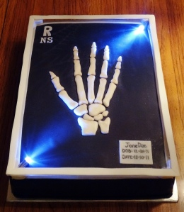 Hand x-ray birthday cake. Do you know what bones are missing?