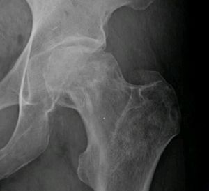 Avascular necrosis of the femoral head - radiograph of the left hip shows flattening of the femoral head compatible with AVN.