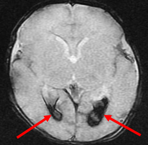 Intraventricular hemorrhage- axial gradient recalled echo image of the brain demonstrates susceptibility within the ventricles bilaterally (red arrows), compatible with layering intraventricular blood.