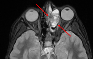 Sinonasal Osteosarcoma - Axial STIR (short tau inversion recovery) sequence through the face demonstrates a lobulated hyperintense mas in the left ethmoid sinus with multiple blood-fluid levels.