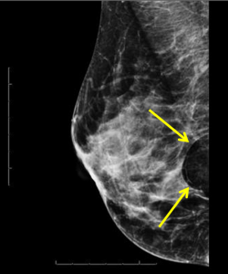 Breast Lipoma: mediolateral oblique (MLO) image of the right breast demonstrates a fat containing circumscribed oval mass in the posterior breast compatible with a breast lipoma, BIRADS category 2, benign.
